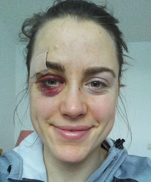 AU: Synnøve Solemdal fikk seg en ordentlig blåveis like før nyttår. Her tar hun bilde av seg selv.