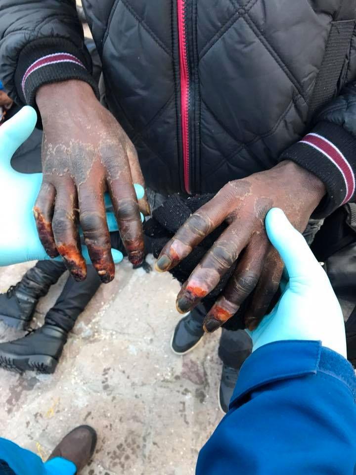 TØFFE FORHOLD: Den norske legen Ali Watti undersøker de frostskadede hendene til en 19 år gammel flyktning.