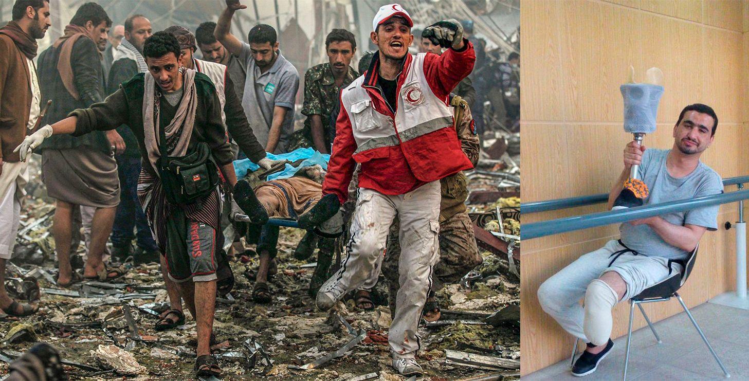 ANGREPET: Redningsarbeidere bærer bort en offer fra et saudiarabisk angrep mot en begravelse i Sanaa, Jemen i oktober 2016. 155 mennesker døde. Sami Abadan mistet et ben i angrepet.