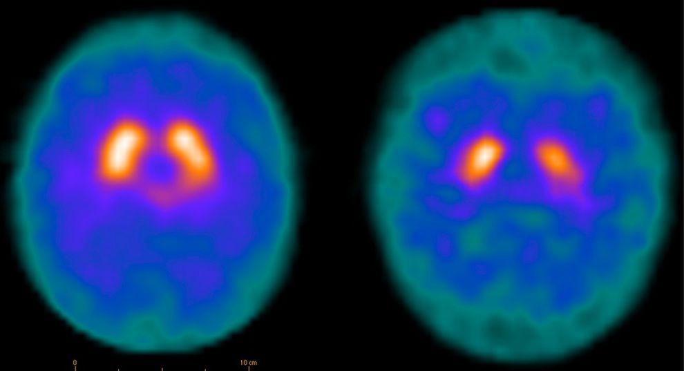 UTEN OG MED PARKINSONS: Til høyre vises en DAT-scan av en hjerne med Parkinsons, mens bildet til venstre tilhører en frisk hjerne. DAT-scannen viser hjerneceller som lager dopamin, som hovedsakelig finnes i midten av hjernen (vises som to «varme» ovalformede strukturer i oransjerødt), og som forsvinner ved Parkinsons sykdom. Foto: CHARALAMPOS TZOULIS