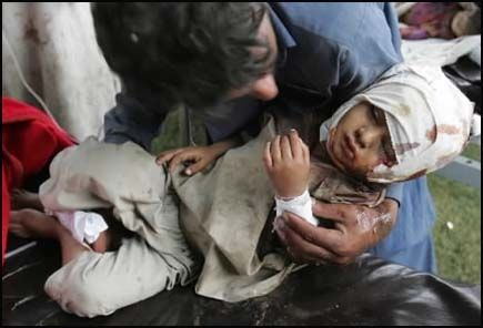 SKADET: En pakistansk far får hjelp til sønnen sin som ble skadet da jordskjelvet rammet i natt. Foto: AP