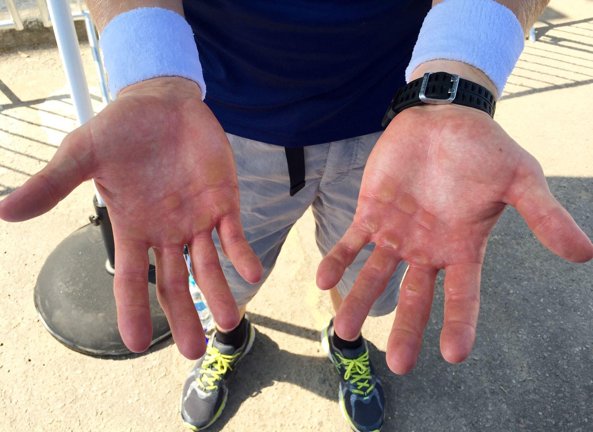 IKKE GODT TAK: Kjetil Borch hender er preget av noen tøffe måneder. Det er ingen god kombinasjon med det oljeaktige vannet på Lagoa-sjøen. Derfor ble det hansker i semifinalen.