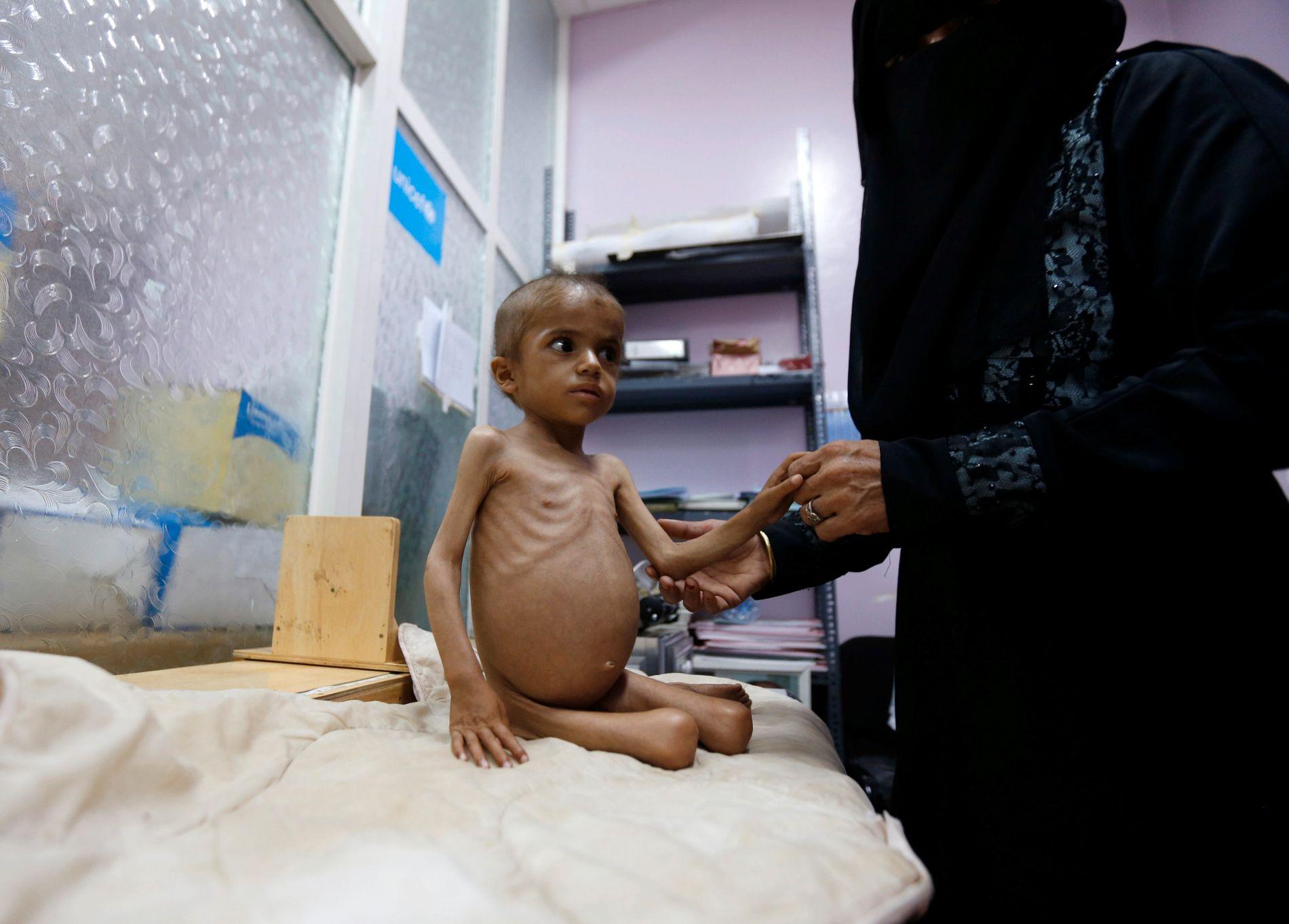 MATMANGEL OG BOMBER: Rasha Sadeq Ahmed (4) holdes av sin mor i et senter for underernæring i hovedstaden Sanaa.