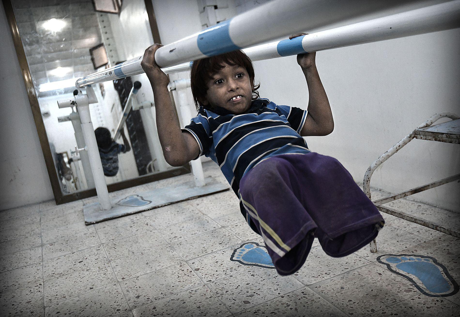 SPRELSK: Emad Yahyah (7) viser stolt frem triksene sine på turnstangen på protesesenteret i Aden.