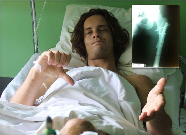 STOR LIDENSKAP: Andre Villa begynte å kjøre motocross da han var fire år. Det har aldri vært noe tvil om hva han skulle gjøre.- Det har blitt lite tid med familie og venner, men det har vært verdt det, sier han. Her ligger han på sykehus i Polen  med flere brudd i kroppen etter ulykken.