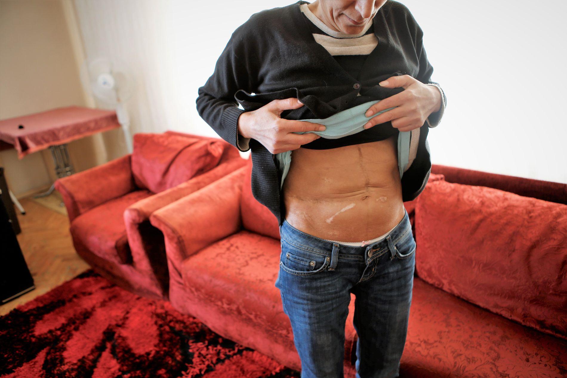 ARRET: Arret etter en levertransplantasjon er formet som en omvendt L. Mune viser frem sitt arr.