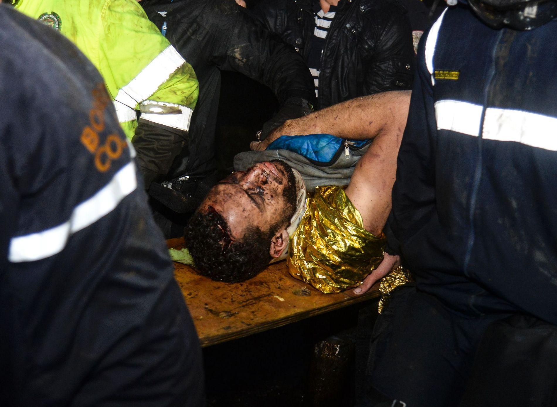 REDDET: Den brasilianske fotballspilleren Helio Zampier Neto blir hjulpet av ambulansepersonell etter å ha blitt reddet ut av flyvraket på tirsdag. 19 av hans lagkamerater skal ha omkommet i tragedien.