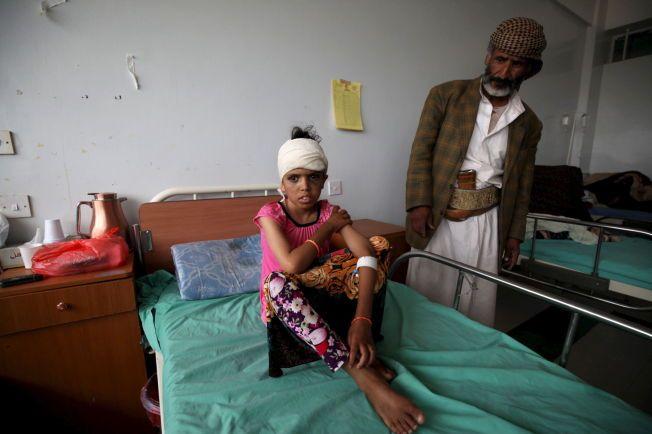 SKADET: Et barn som har havnet på sykehus etter et luftangrep fra Saudi-Arabia sitter på en seng i Sanaa, hovedstaden i Jemen, 25. juli 2015.