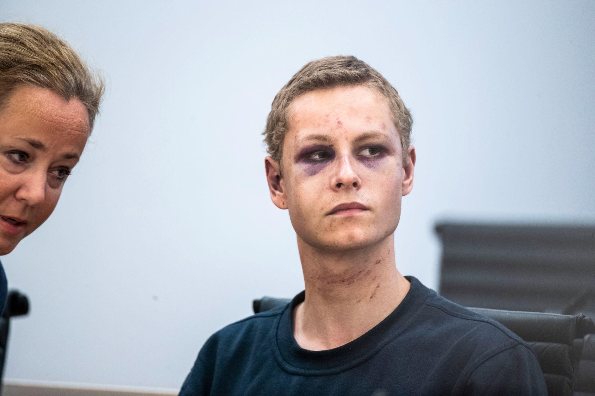 ERKJENNER: Philip Manshaus (21) erkjenner de factiske forhold.