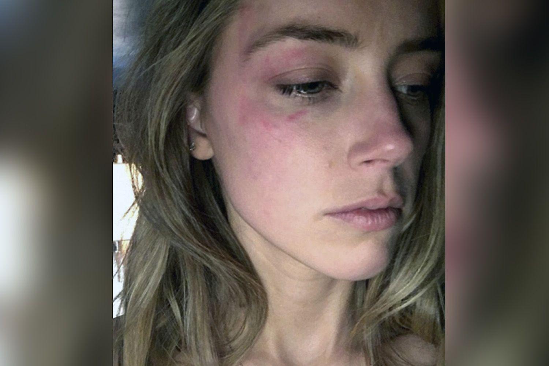 FORSLÅTT: Dette bildet av Amber Heard skal vise skader Depp påførte henne.
