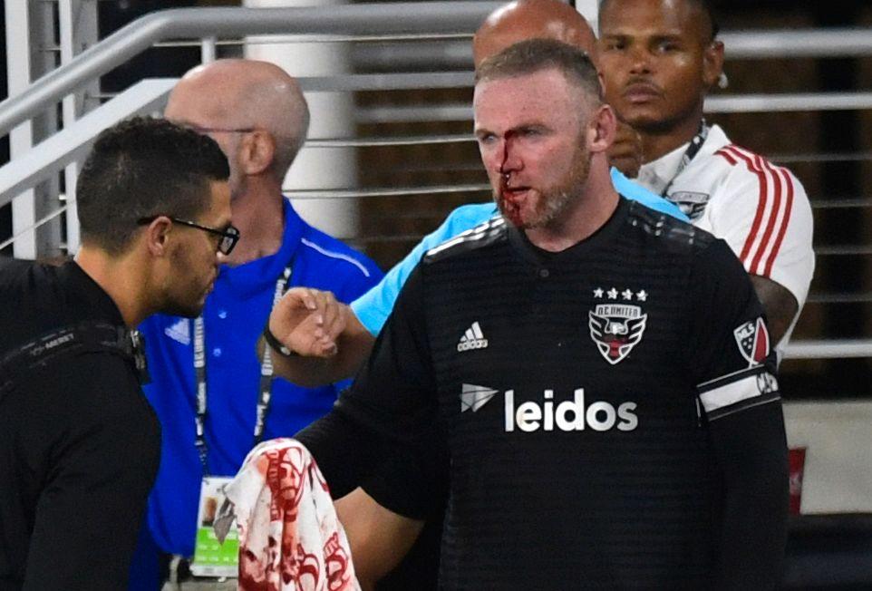BLODIG LØRDAG: Wayne Rooney måtte rett i garderoben etter å ha knekt nesen sist lørdag.
