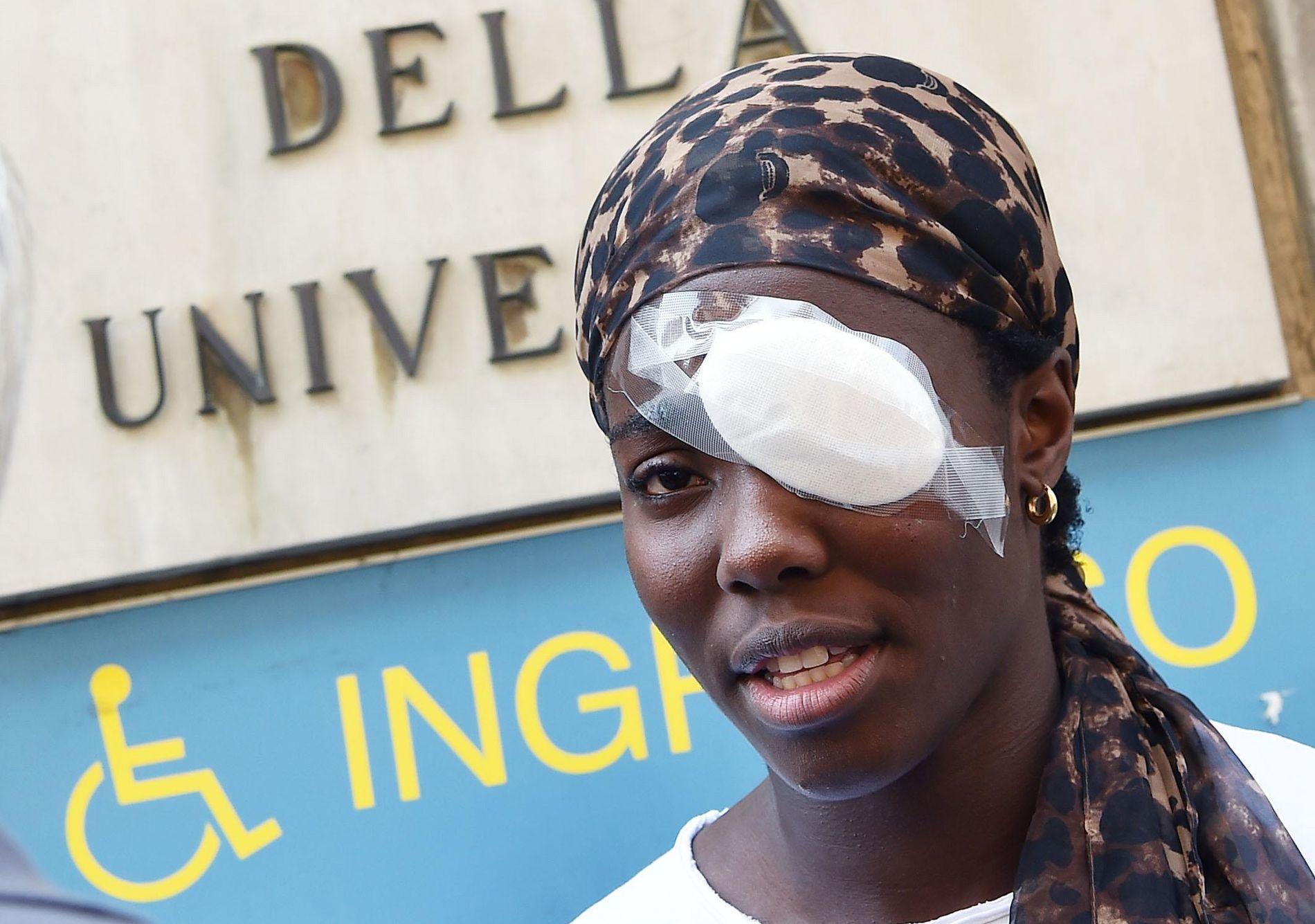 PÅ SYKEHUS: Daisy Osakue fotografert utenfor klinikken der hun mandag ble behandlet for en skade på hornhinnen.
