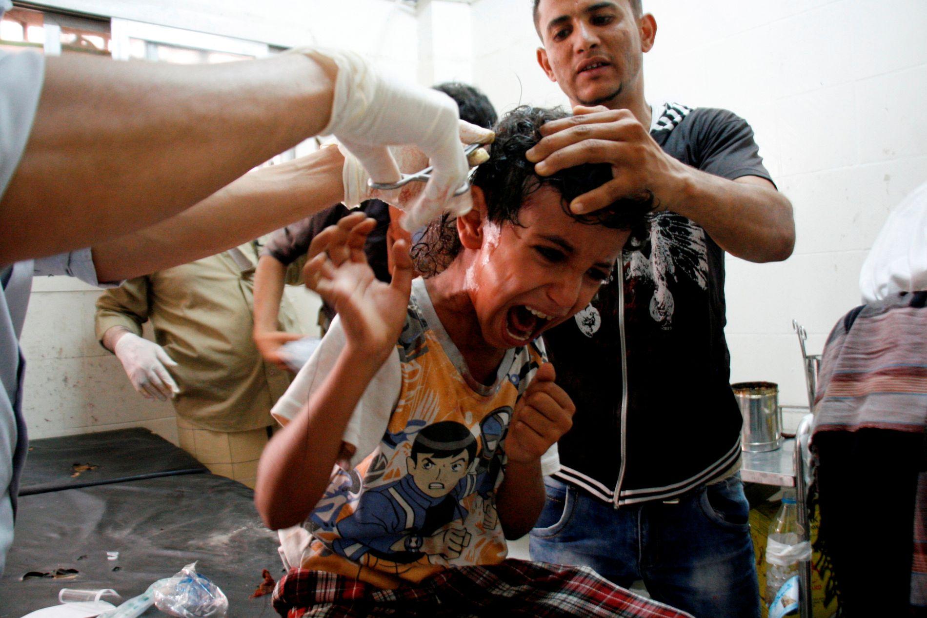 SKADET I KRYSSILD: En gutt får behandling etter at han ble skadet i kryssild mellom Houti-opprørerne og styrker støttet av blant andre De forente arabiske emirater, i byen Taiz, sørvest i Jemen.