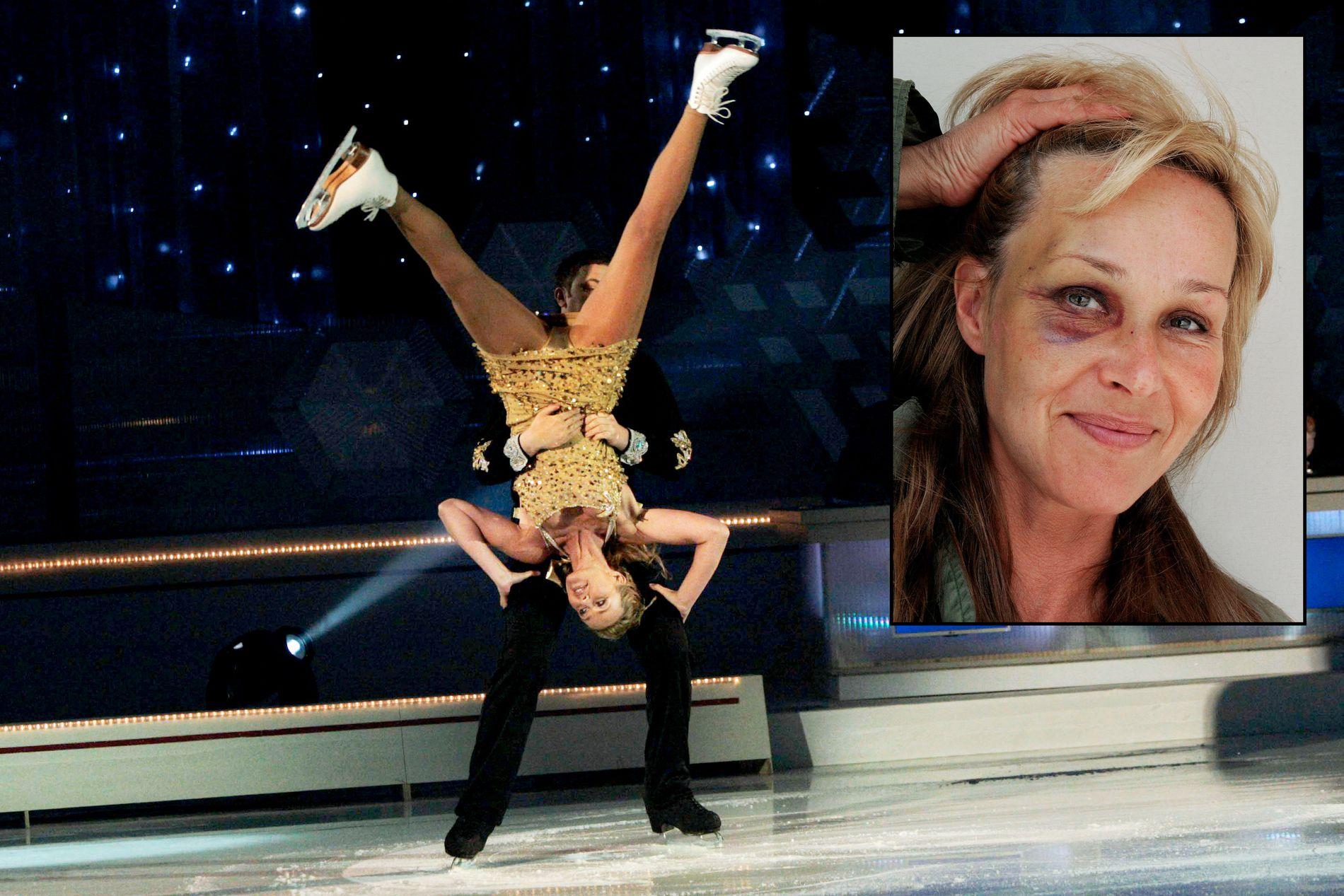 STERKT FORSLÅTT: Det var under generalprøven til «Isdans» at Dorthe smalt ansiktet i isen da dansepartneren hennes mistet balansen. Elleve år senere har hun fortsatt ikke sett klippene av det som skjedde.