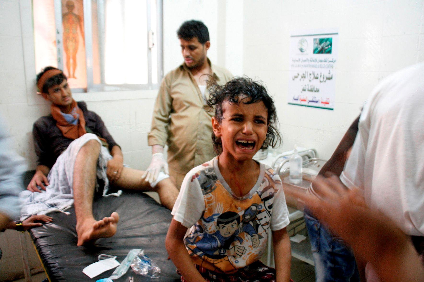 RAMMET: En gutt gråter etter å ha blitt skadet i kryssild i kamper mellom grupper støttet av Saudi-Arabia og De forente arabiske emirater, og Houti-opprørerne i byen Taiz i fjor sommer.