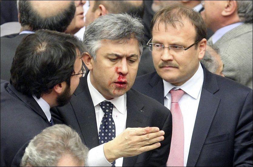 BLE SLÅTT TIL: Parlamentsmedlemmet Ali Ihsan Kokturk fra opposisjonspartiet Republikansk folkeparti (CHP) blør neseblod etter en slåsskamp i den tyrkiske nasjonalforsamlingen. Foto: Stringer / REUTERS / NTB scanpix