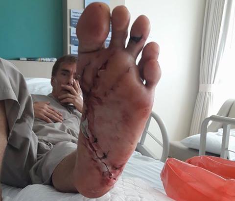 MANGE STING: Werner Danielsen måtte så 19 sting etter svømmeturen der noe jafset etter foten hans.