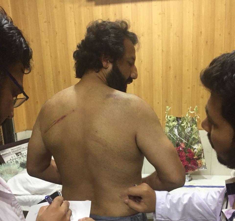 SLÅTT: Zaman hadde merker på kroppen etter møtet med pakistansk politi. Bildet er fra de medisinske undersøkelsene etter at han var løslatt Pakistan.