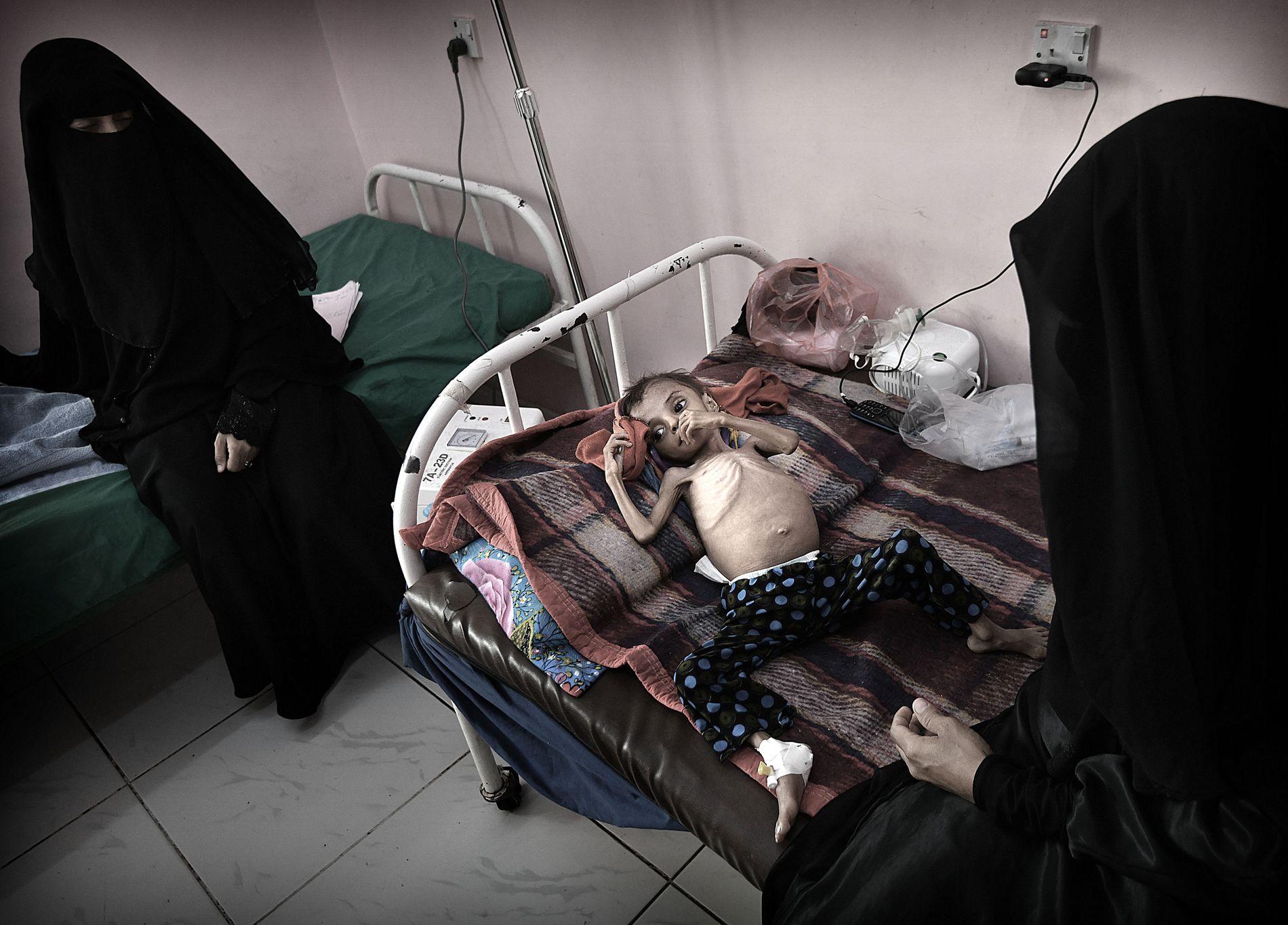 FORSVINNER: Aisha Ibrahim Ahmed (3) er akutt underernært og får behandling ved Al Sadaqa-sykehuset i Aden. Naziha Mahioub (26) (t.h.) begriper ikke hvorfor datteren er syk.