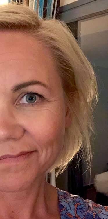 SELFIE: Ingvild Kjerkol har postet dette bildet på Facebook, av sin friske ansiktshalvdel. Hun gir VG tillatelse til å bruke bildet.
