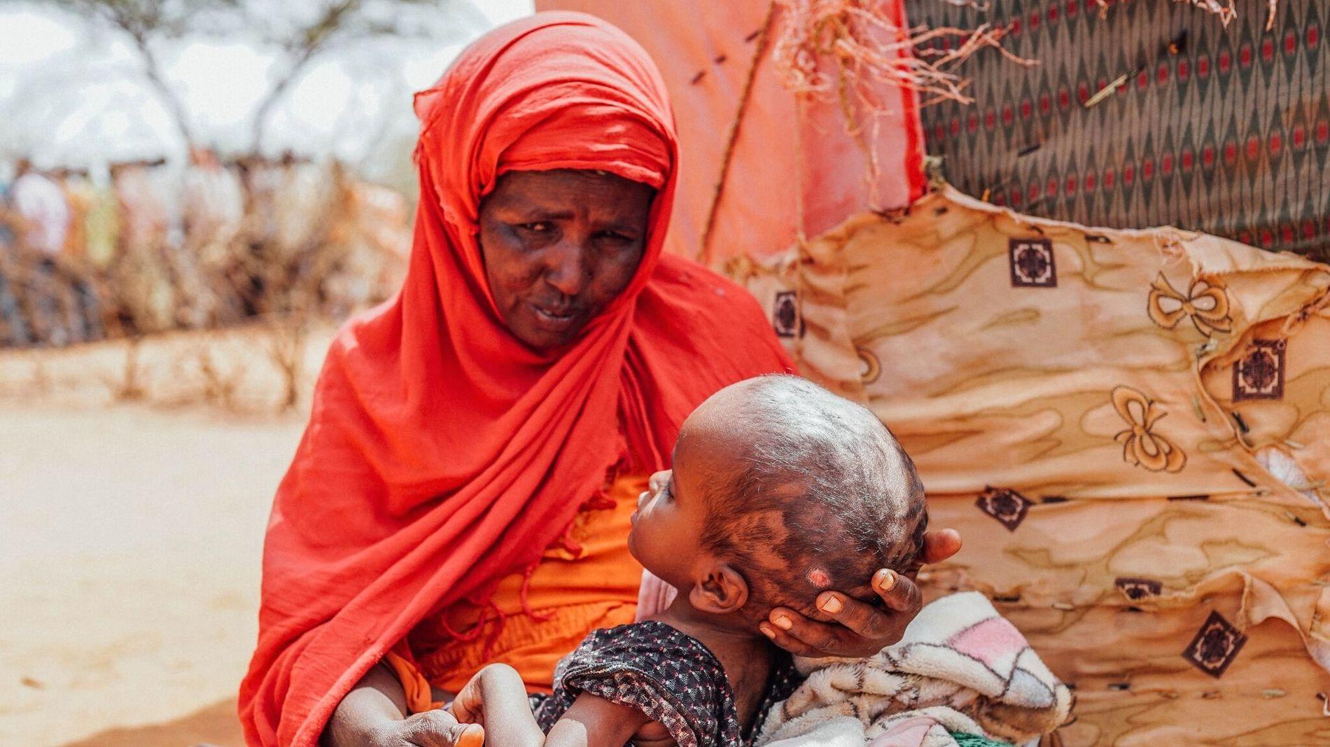 SYKT BARN: Kinsi Hassan bor i flyktningleir på grensen mellom Somalia og Etiopia. Datteren Nora er fire år og er alvorlig syk, men får ikke behandling.