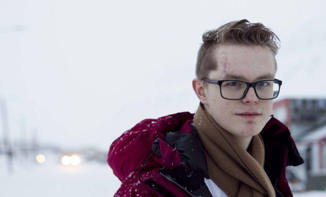 Viljar Hanssen fotografert på den tiden han slapp ut fra sykehuset, åtte måneder etter at han  ble skadet på Utøya 22. juli 2011.