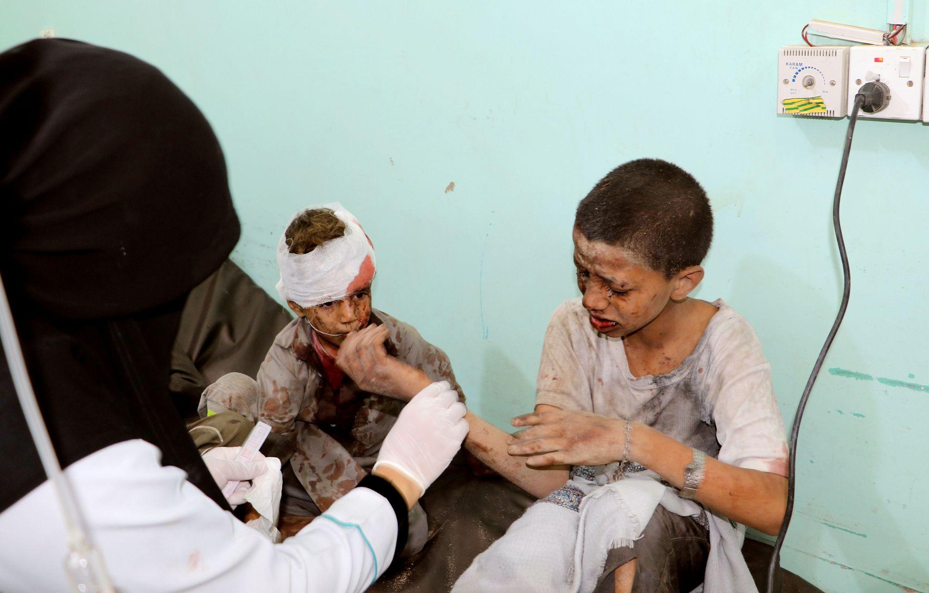 BEHANDLES: EN lege ser til to skadede barn torsdag etter et flyangrep i Saada i Jemen.