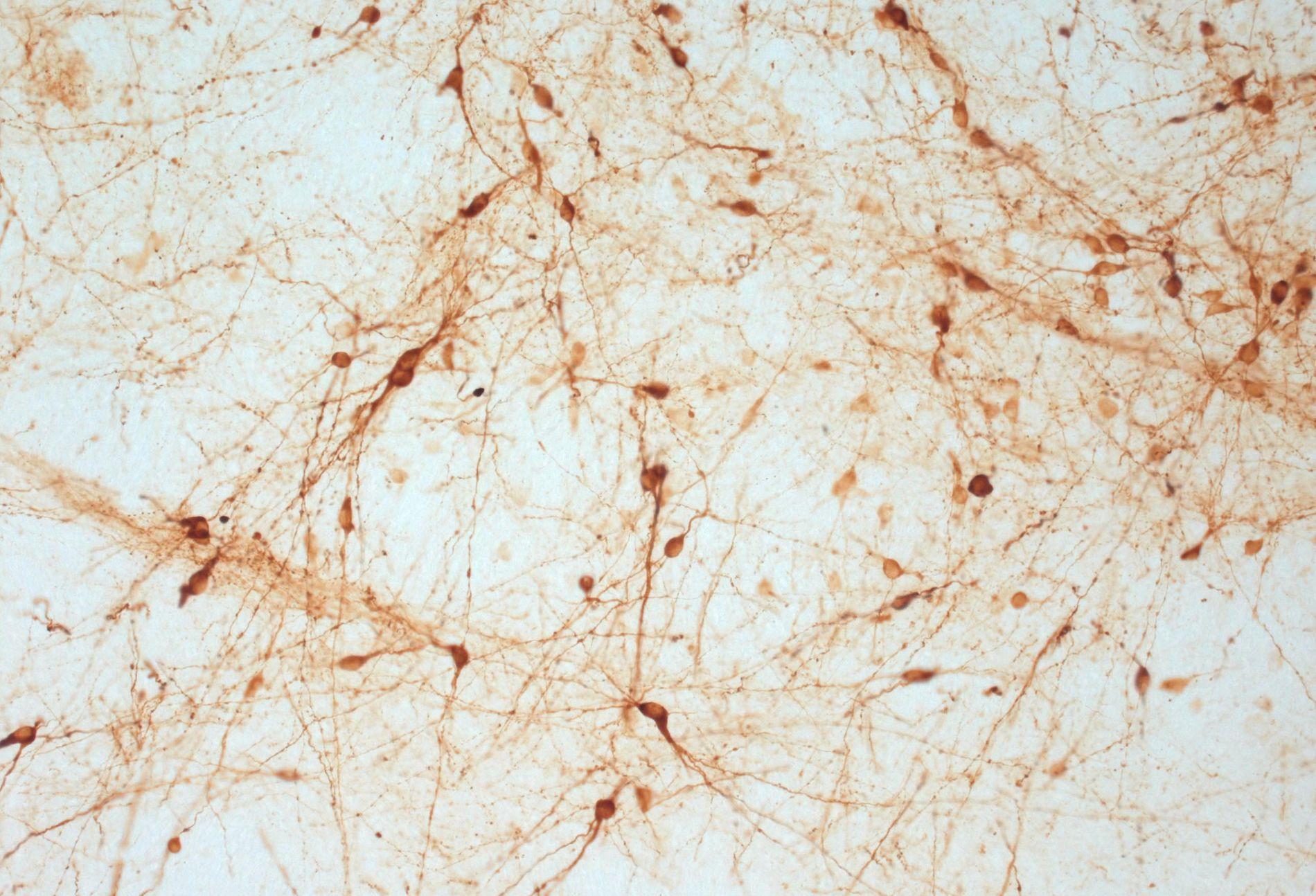 TRANSPLANTERTE CELLER: Dette bilder viser transplanterte dopaminceller som har modnet i hjernen til en rotte.