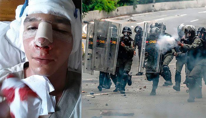 BANKET OPP OG TRUET: Til venstre: Frederik González ble grovt mishandlet av paramilitære grupper knyttet til regjeringen, da han nektet å følge ordre om å drepe demonstranter. Til høyre: Regjeringsstyrker har stått bak flere regelrette drap på demonstranter som har protestert mot den autoritære regjeringen de siste årene.