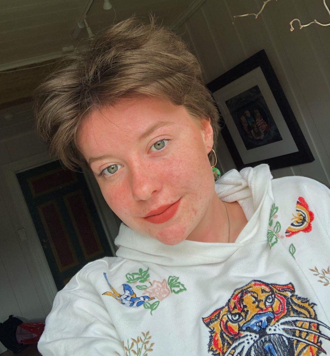 «25 UNDER 25»: Live Lerfald Bergum skriver om skjønnhetspress i «25 under 25», kronikkserien for unge.