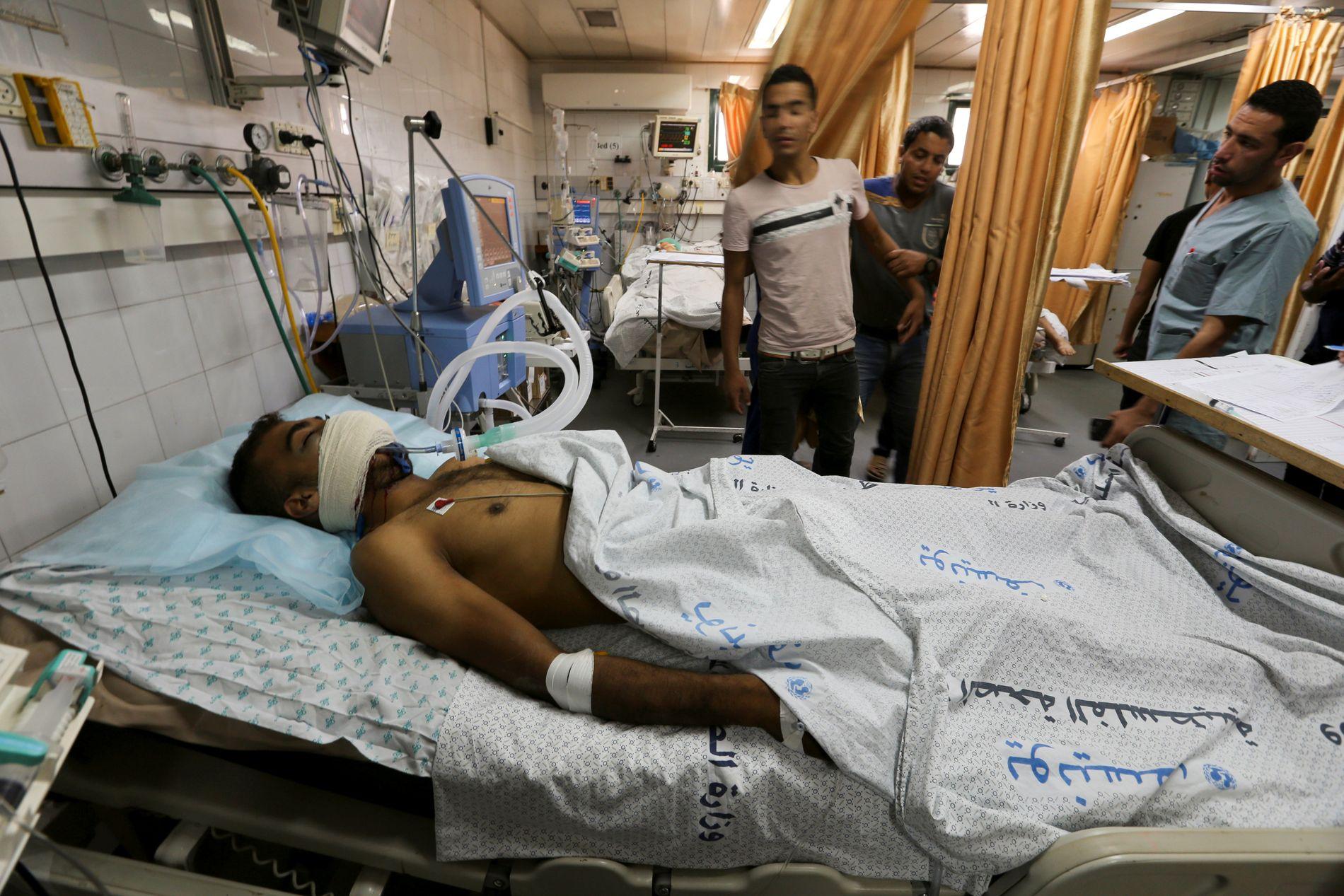INTENSIVAVDELING: Abu Sabla koblet til en pustemaskin på et sykehus i Gaza.