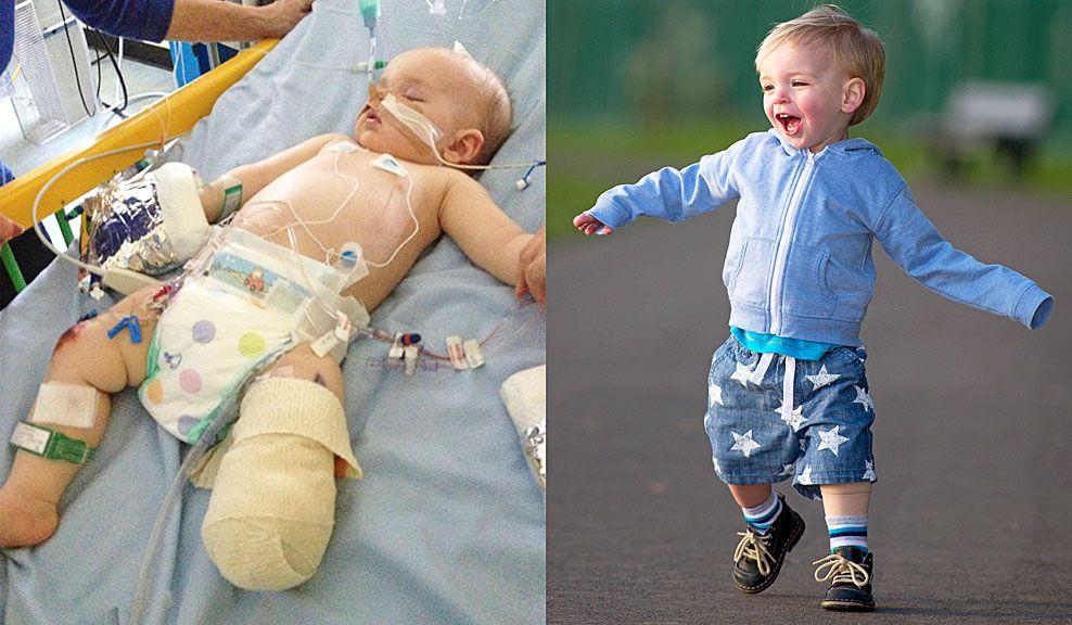 ccfbdbff Noah (1 1/2) mistet benet etter hjernehinnebetennelse: Nå løper han