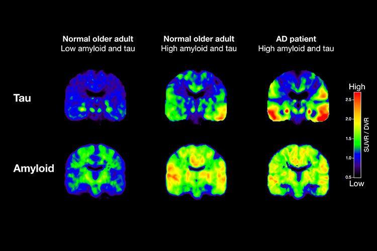 PLAKK: Hjernescanninger, her fra et forskningsprosjekt ved Berkeley, viser at proteinene tau og amyloid hoper seg opp i hjernene våre når vi eldes. Hos Alzheimers-pasienter (de to hjernen lengst til høyre) ser forskerne ekstra mye plakk. Men om det er en årsak til eller en virkning fra sykdommen, er ennå uvisst. BILDE: Michael Schöll