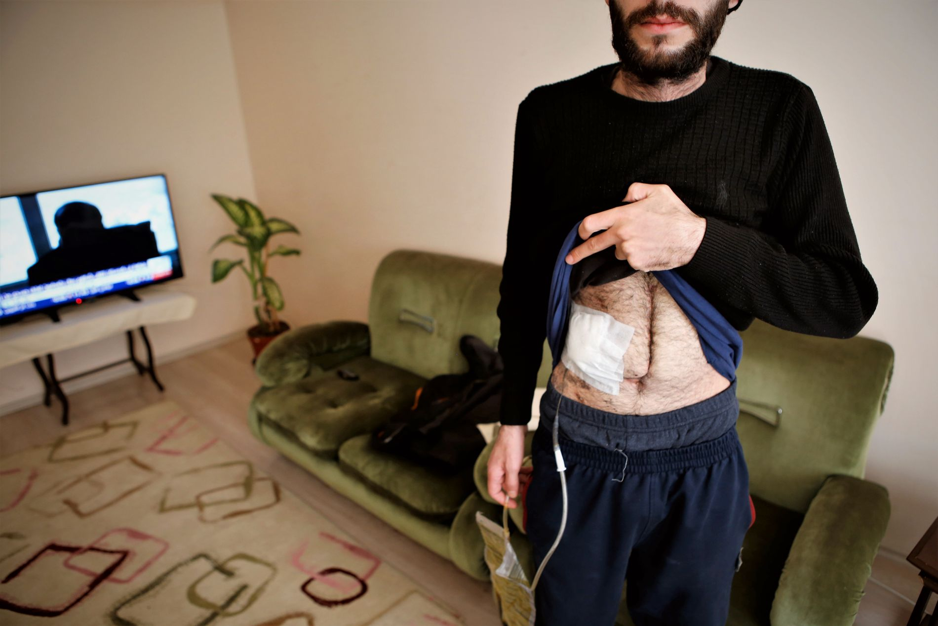 ULOVLIG SALG: Salg av organer er forbudt i Tyrkia, men Abualrim (27) fra Syria sier han var i nød. Han viser frem arret etter levertransplantasjonen han gjennomgikk i november.