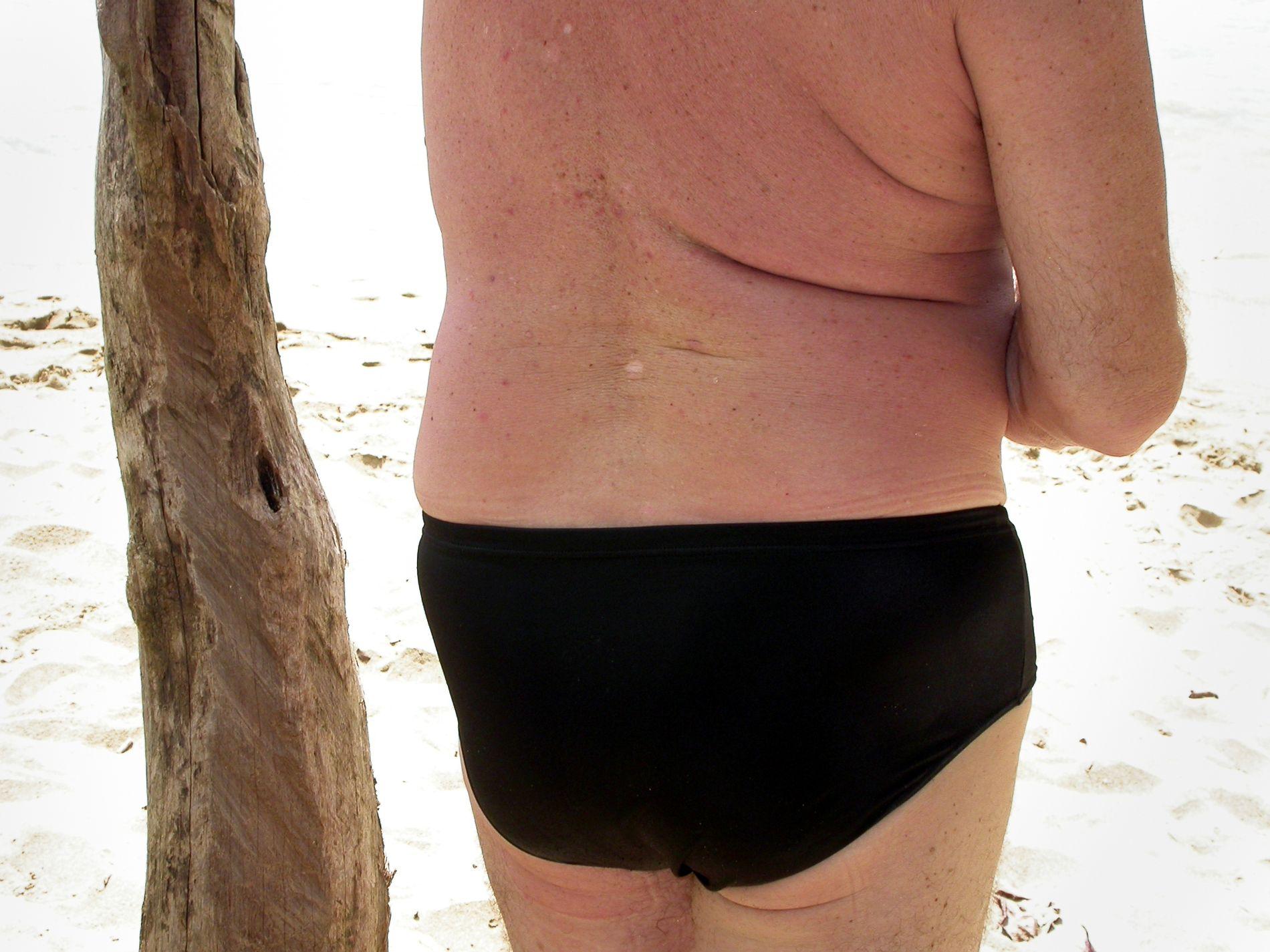 RISIKERER FØFLEKKREFT: Jo mer du veier, jo større risiko har du for føflekkreft, viser en ny studie.