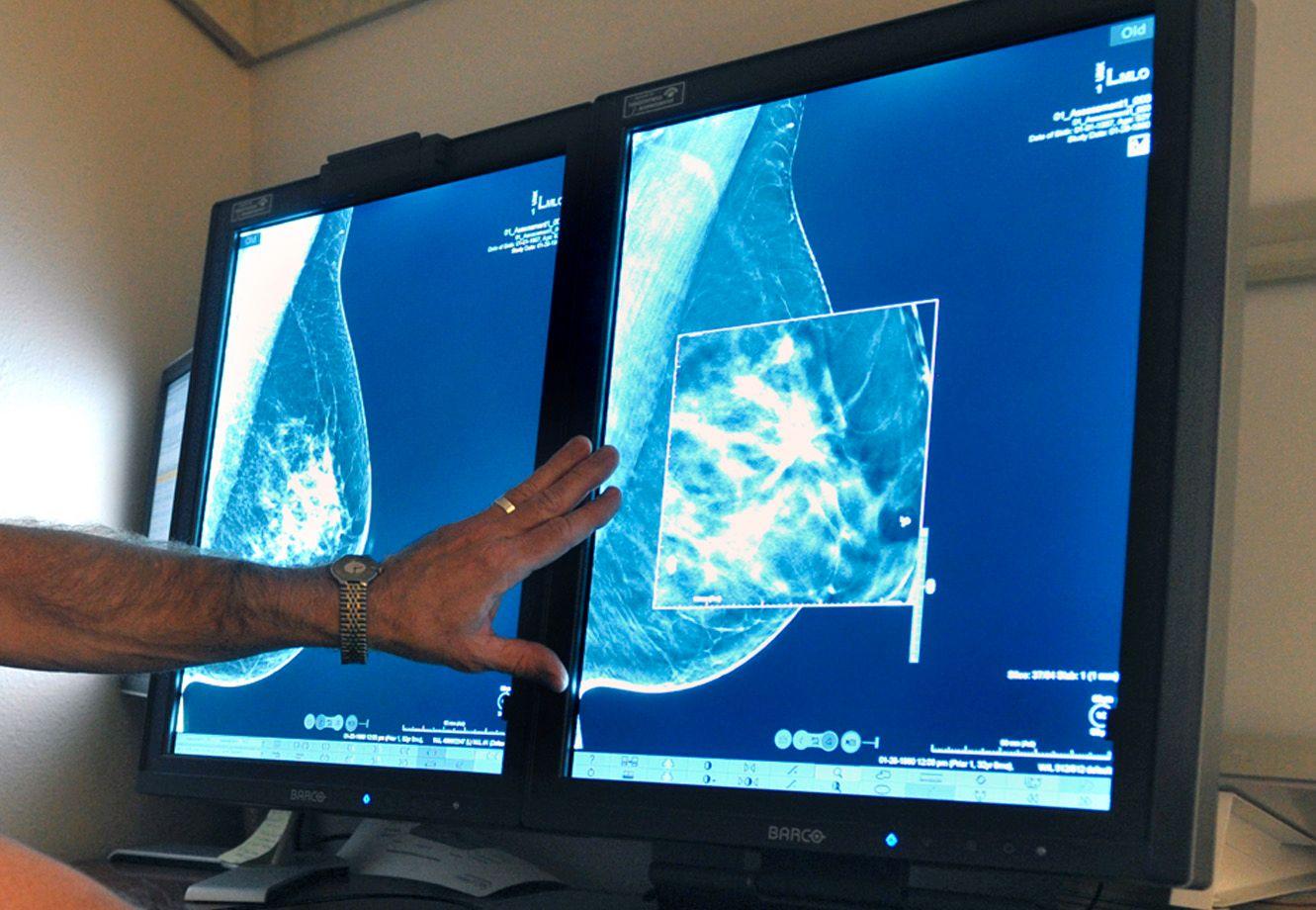 SCREENING: Norske kvinner over 50 år tilbys mammografi hvert 2. år. En bivirkning er falske, positive funn.
