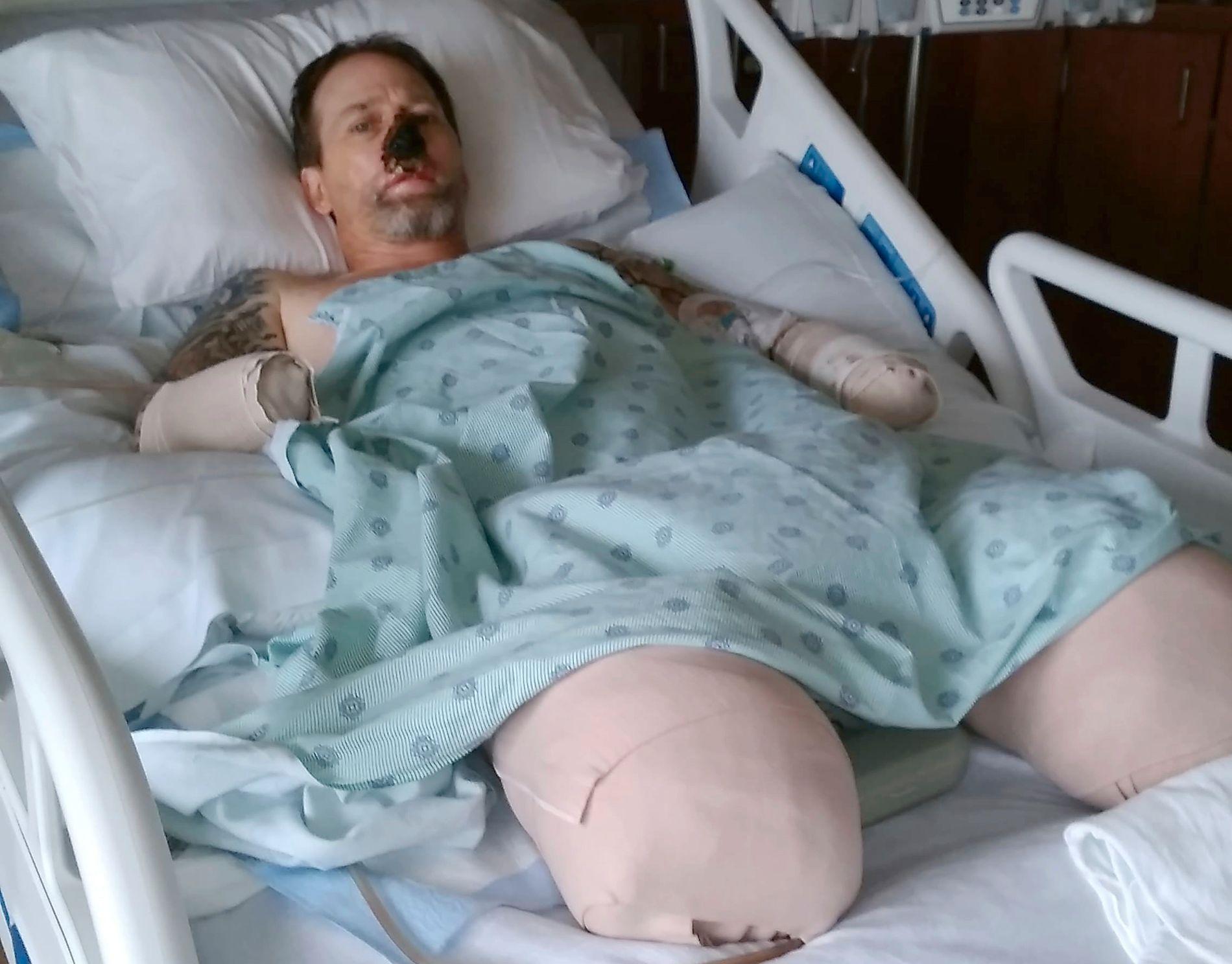 VED GODT MOT: Greg Manteufel i sykehussengen i Milwaukee. Bildet er tatt av hans kone.