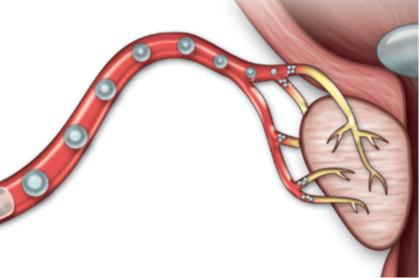 NY BEHANDLING: Små partikler sprøytes inn i de små blodårene som fører til prostatakjertelen. Blodårene tettes, og den forstørrede prostataen skrumper inn.