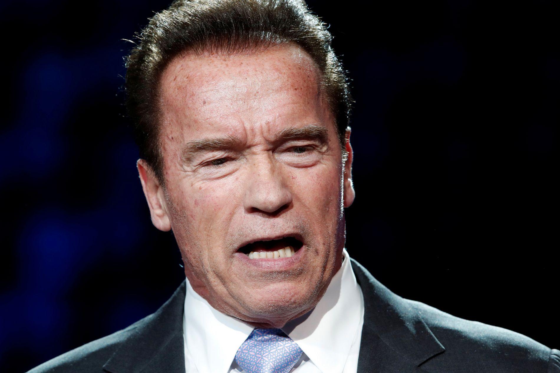 PÅ BEDRINGENS VEI: Arnold Schwarzenegger gjennomgikk en hjerteoperasjonen i mars.