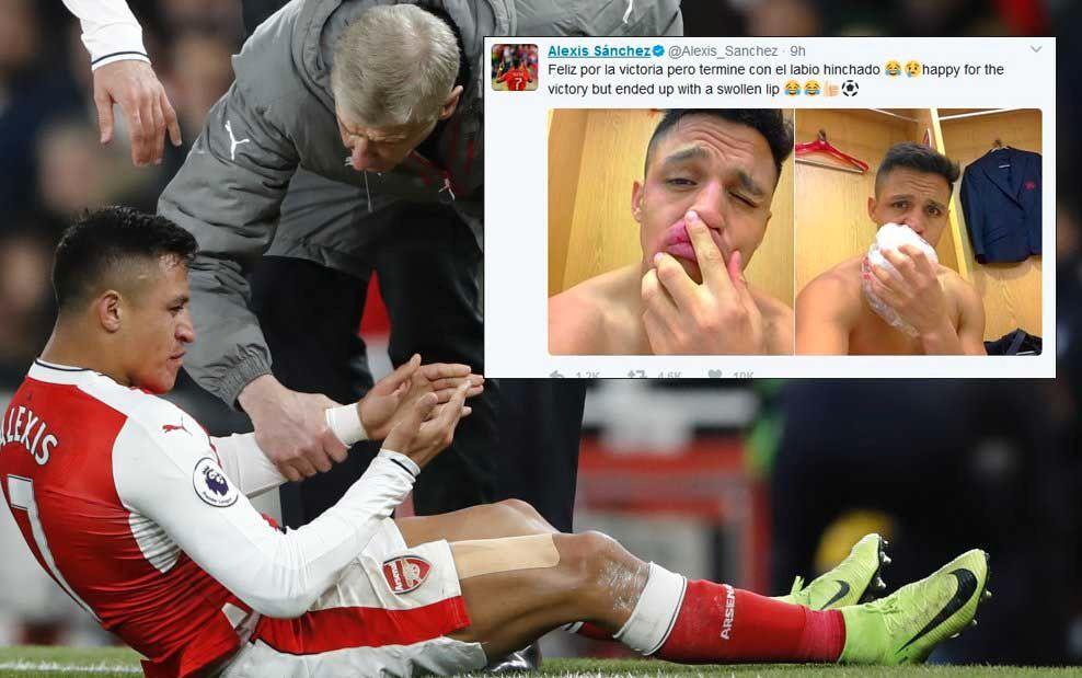 HOVEN LEPPE: Alexis Sanchez tok til Twitter for å vise hvordan leppen hans så ut etter kampslutt mot Leicester i går kveld.
