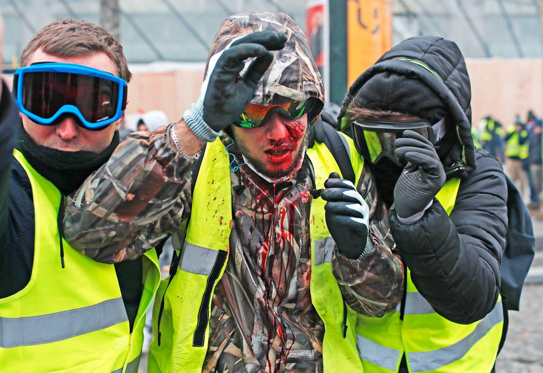 SKADD: En av «de gule vestene»-demonstrantene var dekket av blod etter å ha blitt skadet.