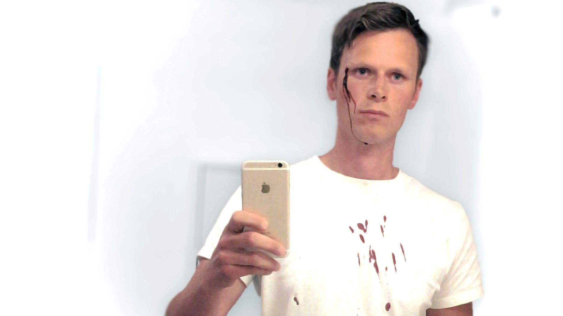 VOLDSOFFER: Bjørn Ivar Nordstrøm ble slått ned av en ukjent person den 5. august i fjor. Dette bildet ble tatt like etter overfallet.