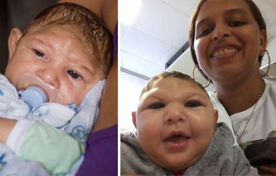 TO MD./SYV MD.: Juan Pedro fra Recife i Brasil ble født med for liten hodeskalle. VG møtte ham og moren Daniele Ferreira dos Santos i februar (bildet t.v.). Nå er han snart syv måneder.