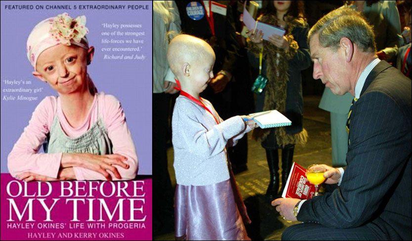 Progeria-syke Hayley (14) har skrevet bok