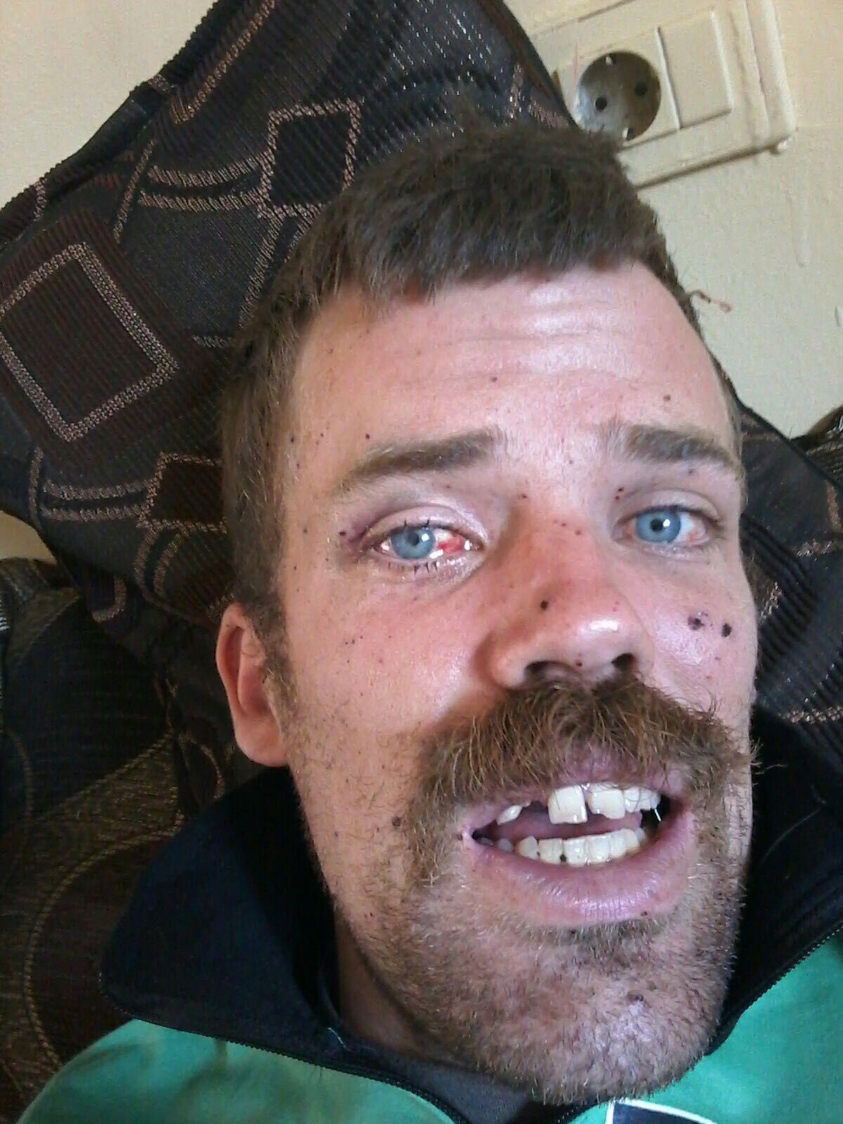 BLINDET: Splinter fra eksplosjonen førte til at Gulbrandsen blind på det høyre øyet og mistet en tann. Bildet er tatt kort tid etter angrepet.