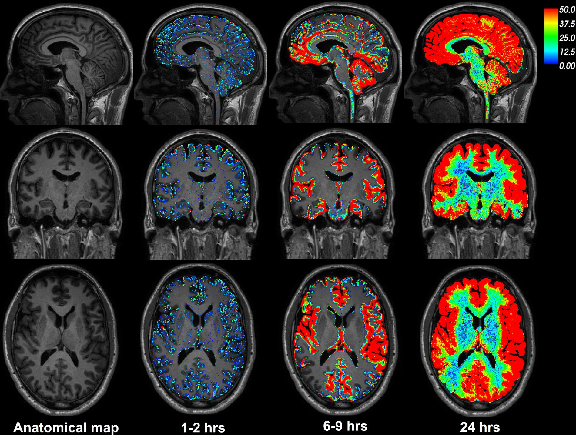 KONTROLLPASIENT: Her ser du hvordan sporstoffet går gjennom hele hjernen, markert ved at den røde fargen blir mer tydelig ettersom tiden går.