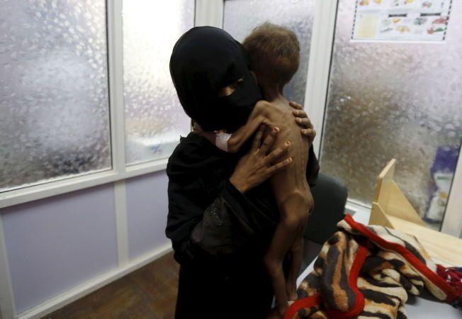 KONSEKVENSE AV KRIG: Moren til en 21-måneder gammel gutt veier sin undervektige sønn på et sykehus i Sanaa i fjor sommer. Mangel på infrastruktur og medisinsk hjelp, som følge av bombingen, gjør at mange små barn blir underernært i Jemen.