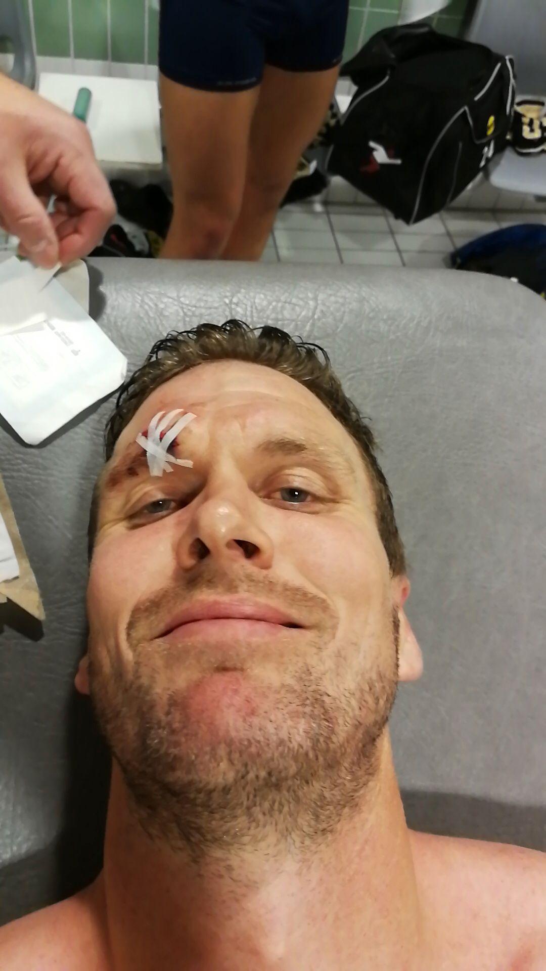 SYKT: Frode Kippe får sydd fire sting over øyete i LSK-gradroben. Men i kveld var han på fest og feiret norgesmesterskapet.