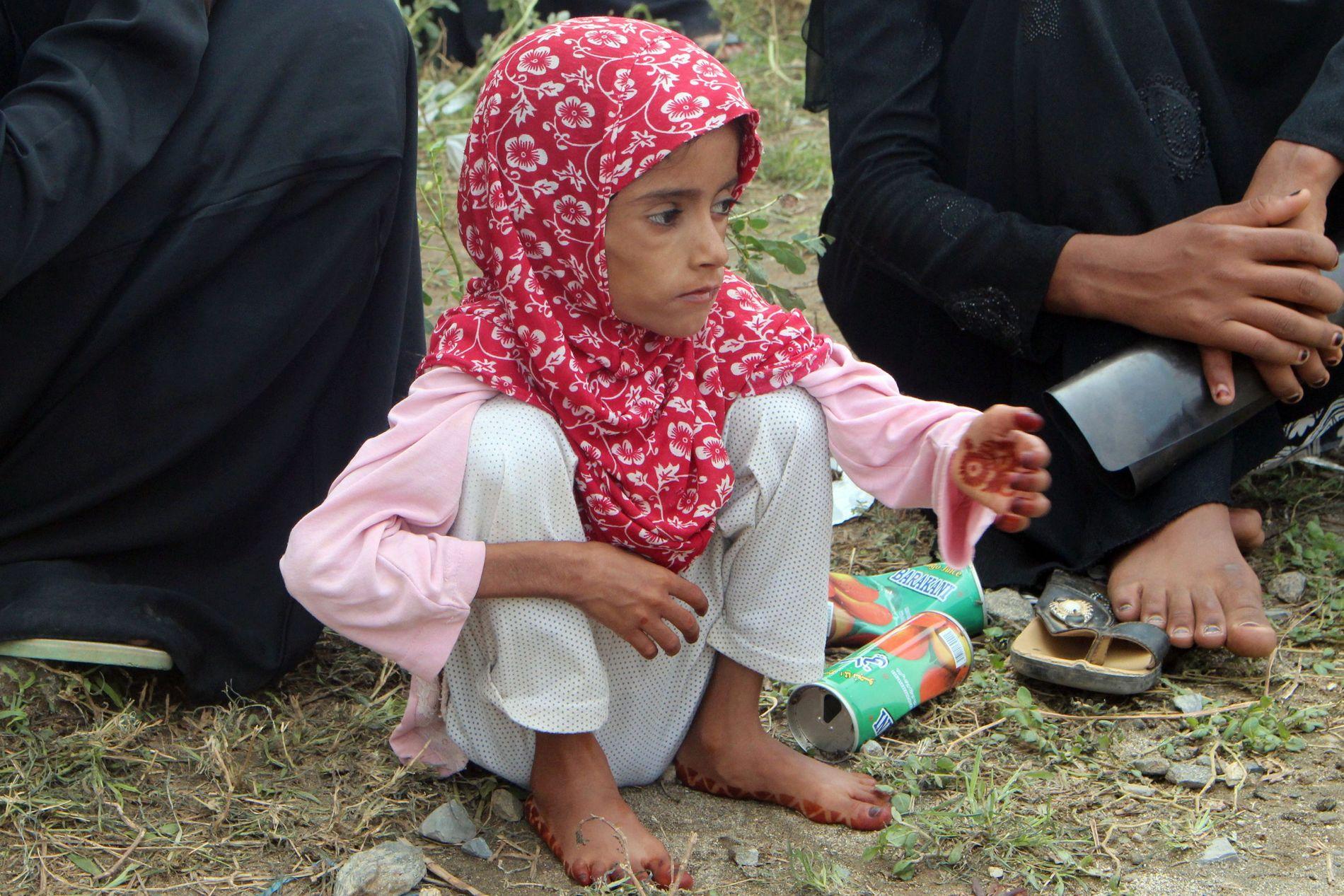 SULTRAMMET: En jente venter på legesjekk i Abs i Jemen i juni i år. Hun er en av 821 millioner underernærte mennesker i verden.