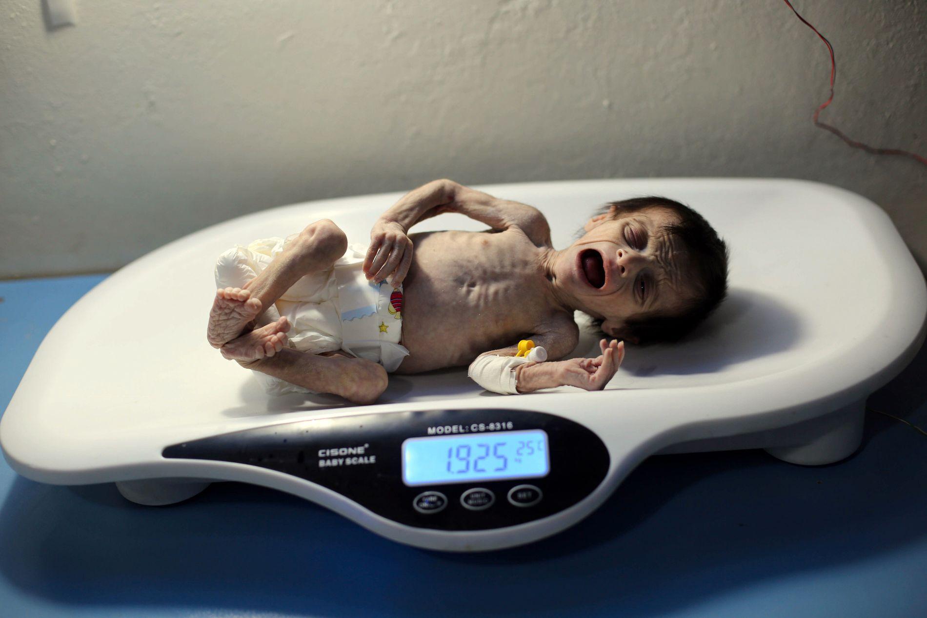 SYK OG SVAK: Vekten viste at Sahar Dofdaar veide like i underkant av to kilo.
